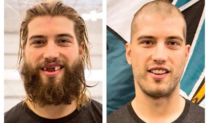Brent Burns Shaves His Infamous Hair & Beard For A Good Cause